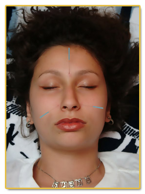 Microcurrent acupuncture facial rejuvenation ass name's